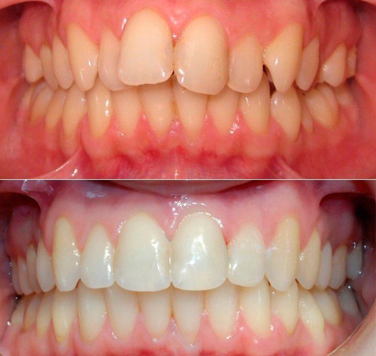 Как в стоматологии исправляют прикус?