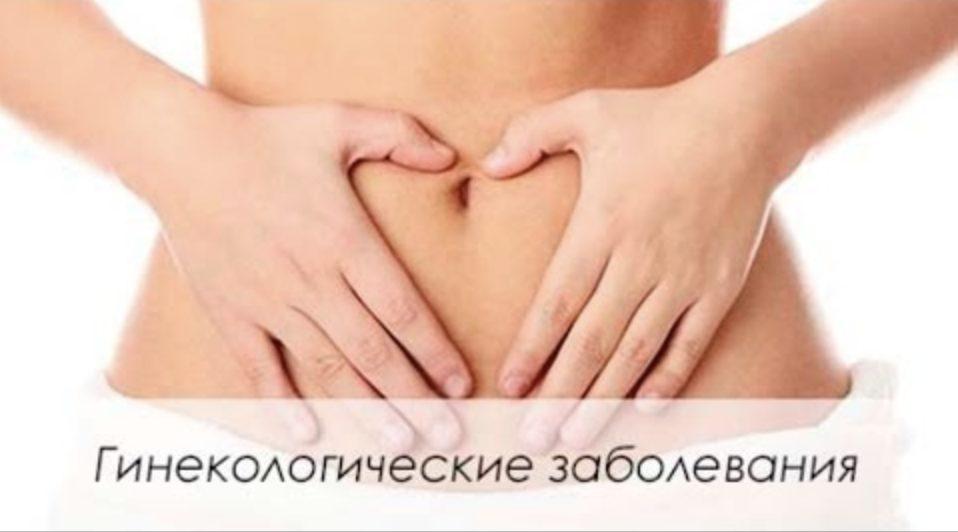 Какие гинекологические заболевания наиболее распространены?