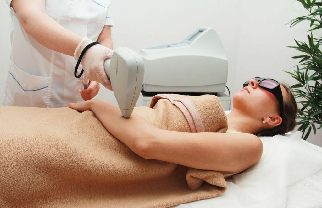 Что такое лазерная эпиляция?